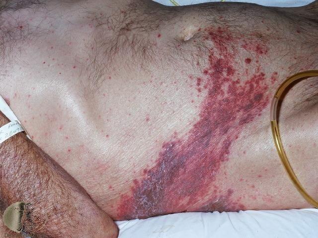 典型的帶狀皰疹,出現在單側、帶狀排列的水皰 Photo Credit: Derm...