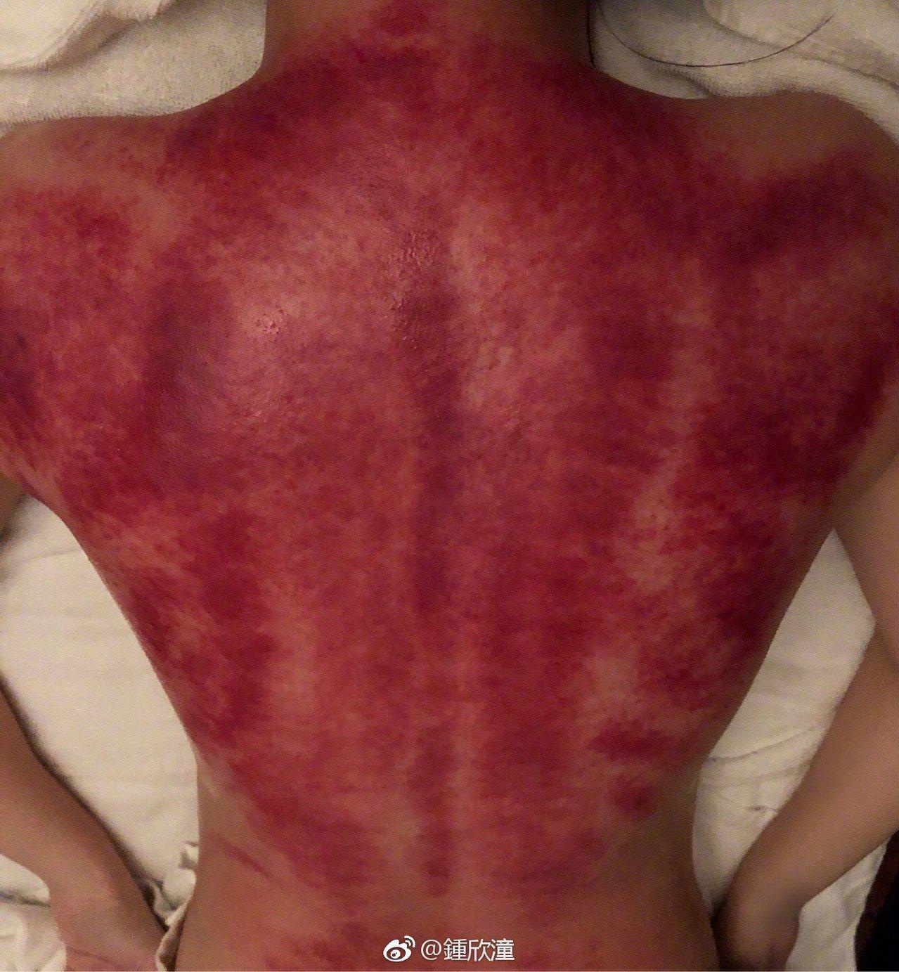 阿嬌刮痧背部紅到嚇人。圖/擷自微博