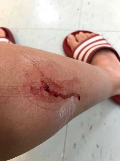 台北市一名女跑友則在政大附近河堤晨跑時,遭到野狗咬傷小腿,更是飽受驚嚇。 記者陳...