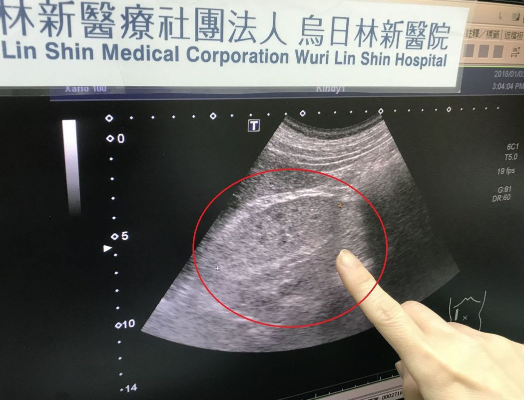 腎臟超音波顯示出腎臟功能已經衰竭。圖/烏日林新醫院提供
