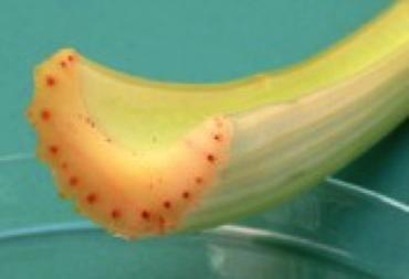 蔬菜的維管束。圖取自科學的養生保健