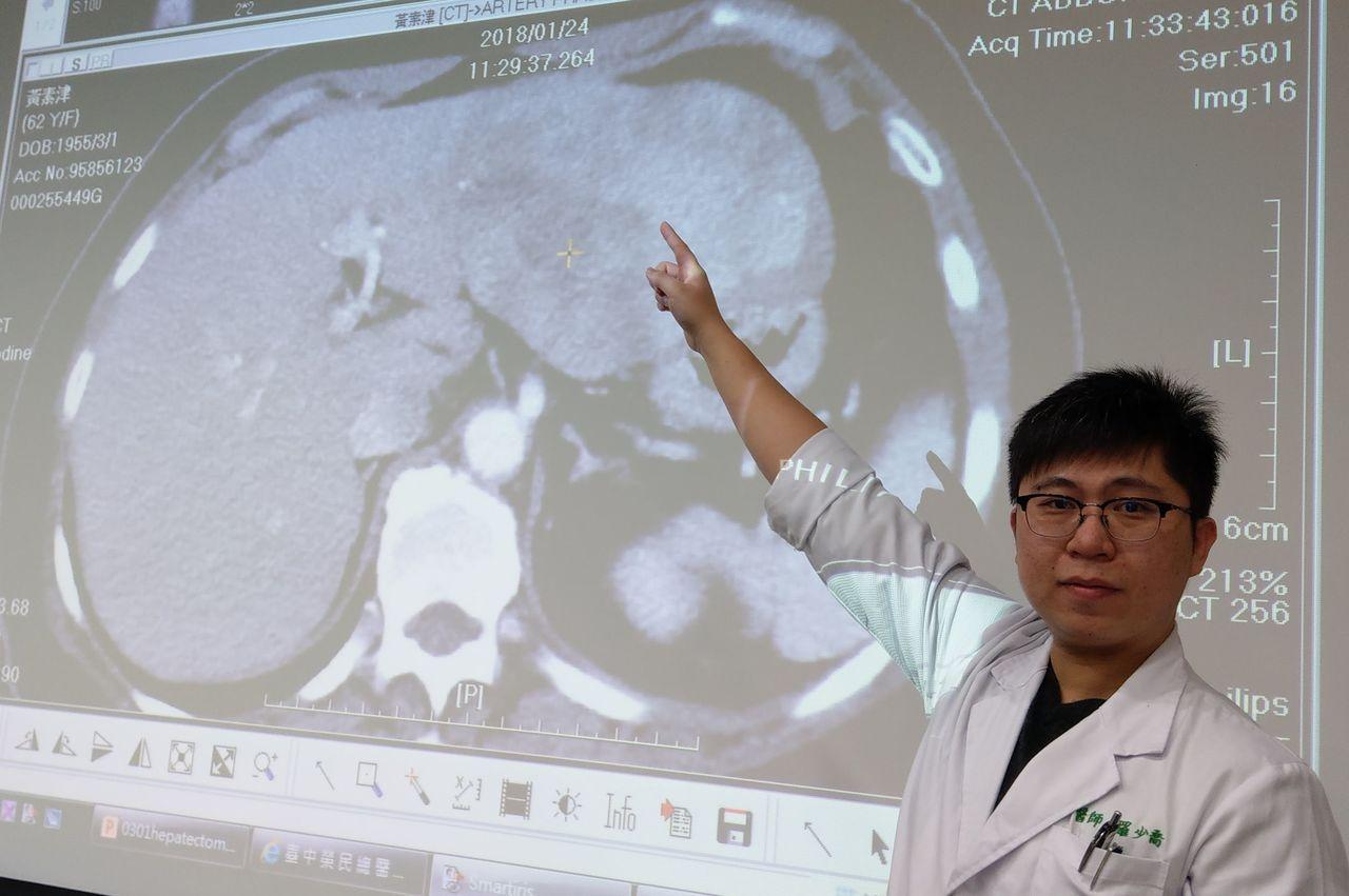醫師羅少喬說明黃姓婦人腫瘤位置。記者趙容萱/攝影