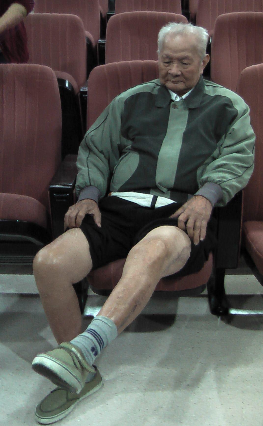 李老先生左下肢因急性廣泛靜脈血栓,在鬼門關前走一遭,成功救治康復。記者徐如宜/攝...