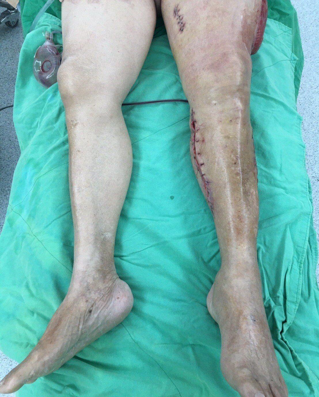 經救治後,左下肢慢慢恢復正常血色。圖/高醫提供