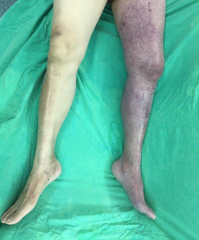 李老先生左下肢因急性廣泛靜脈血栓,整條腿變成紫色。圖/高醫提供