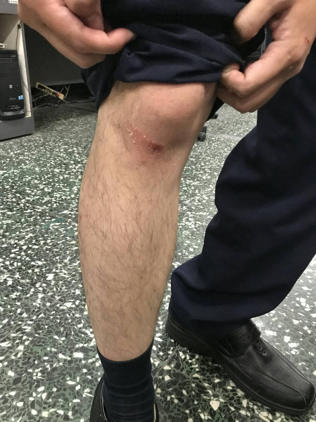 員警易崇儒發現江要逃跑時,當場一手拉住江,造成左手掌,雙膝蓋擦傷。記者劉星君/翻...