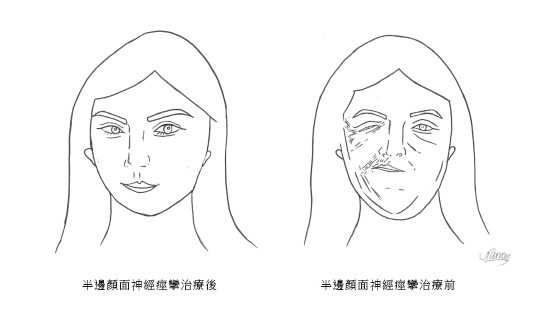 半邊顏面神經痙攣治療前 (左) 半邊顏面神經痙攣治療後(右) 圖摘自/聯經出版《...