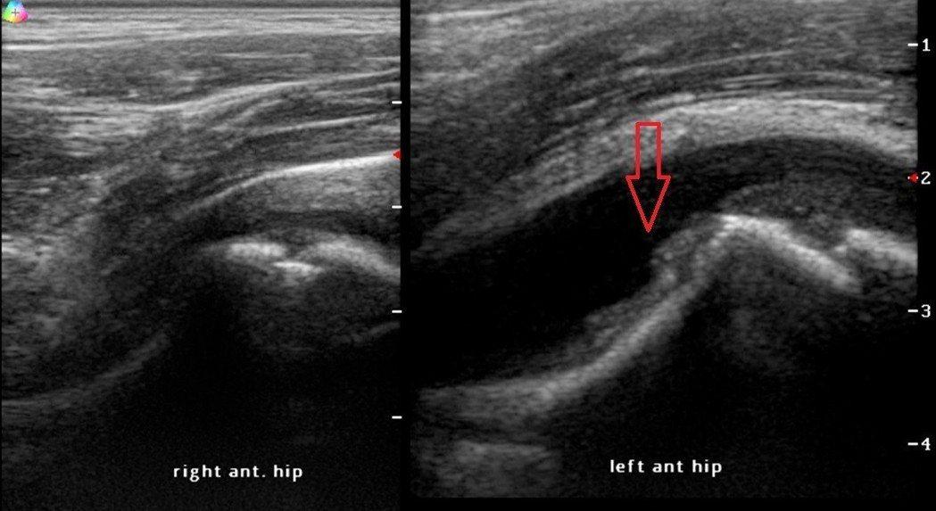 幼童超音波檢查健側髖關節前端無明顯積液(左)患側髖關節前端有明顯積液(右)。照片...