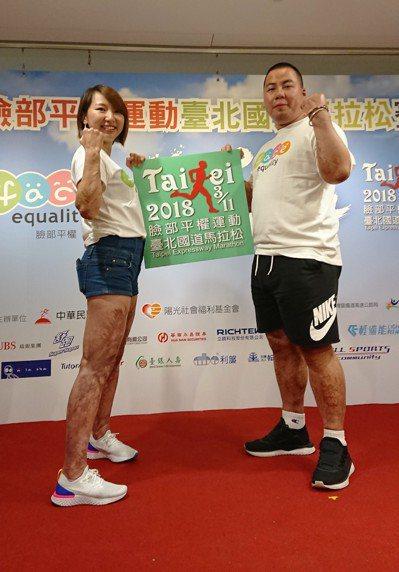 李慧珠(左)正向看待身上傷痕。記者吳思儀/攝影