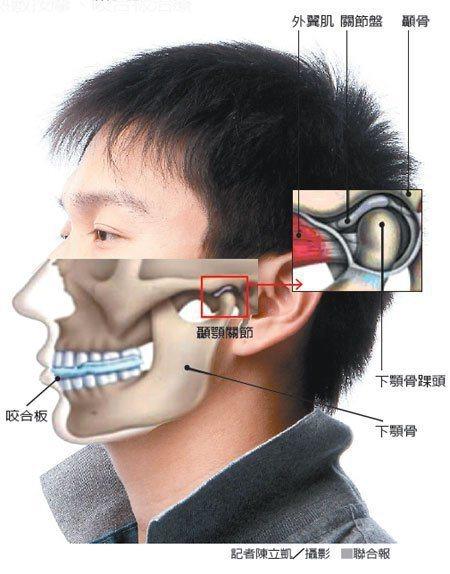 顳顎關節示意圖。 圖/報系資料照