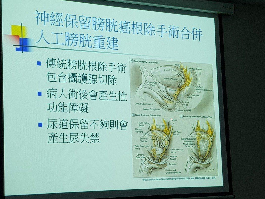 奇美醫院泌尿腫瘤科主任劉建良介紹最新式的「神經留存的膀胱癌根除手術合併人工膀胱重...