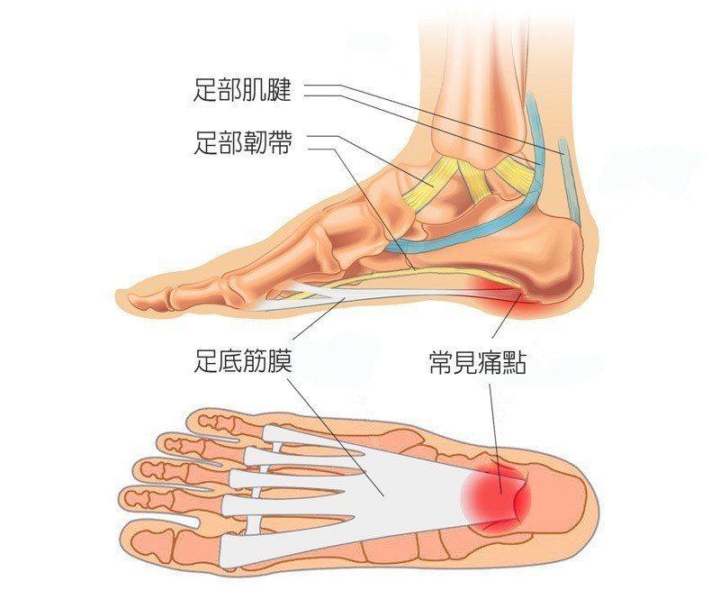 足底筋膜炎相關病灶 圖/菁英診所 提供