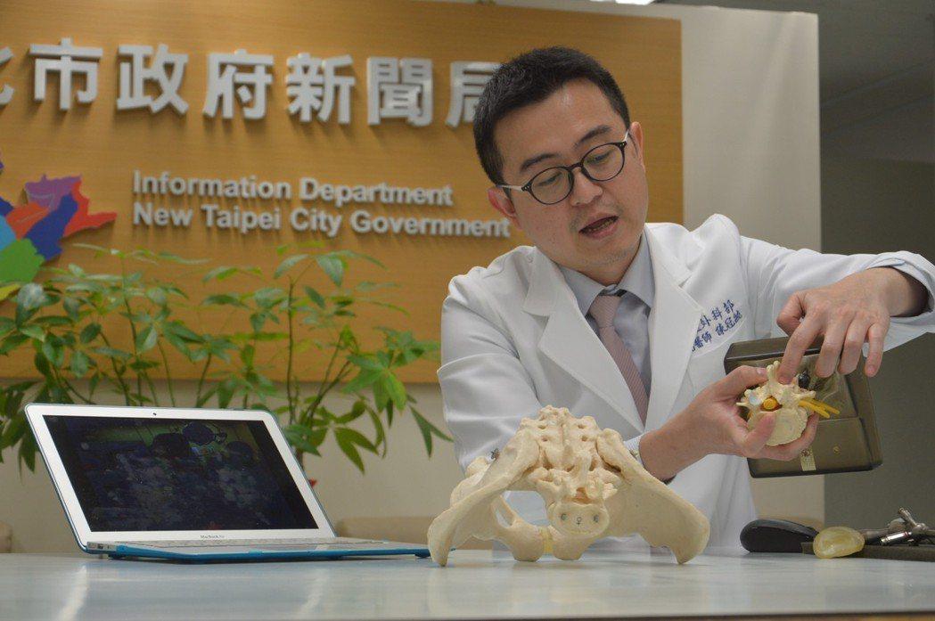新北市立聯合醫院醫師陳冠毓說明微創脊椎手術治療方式。記者施鴻基/攝影