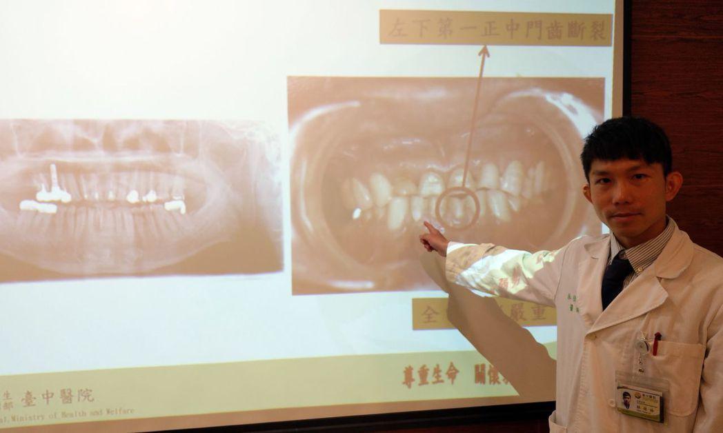 醫師林佳詠說明,這名萬姓病患因長期磨牙,左下第一正中門齒斷裂就醫。記者趙容萱/攝...
