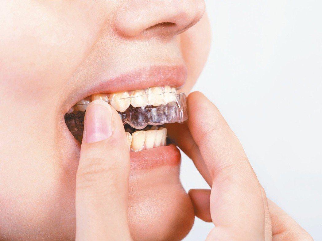 磨牙嚴格來說並不是一種疾病,而是症狀,像是有顳顎關節障礙症的病人若合併有磨牙的問...