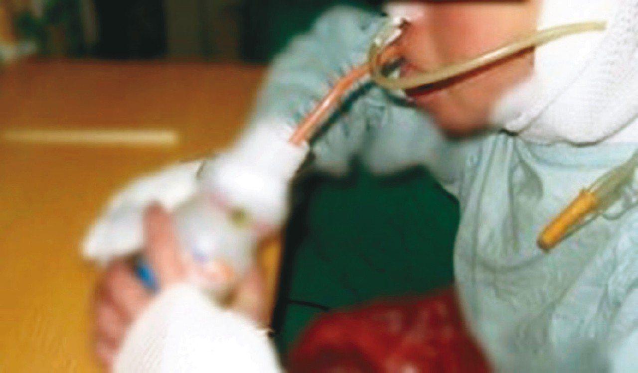 環保署要推不鏽鋼吸管,但有些患者手部功能缺損,更需要輕便、能彎曲的塑膠吸管。 圖...