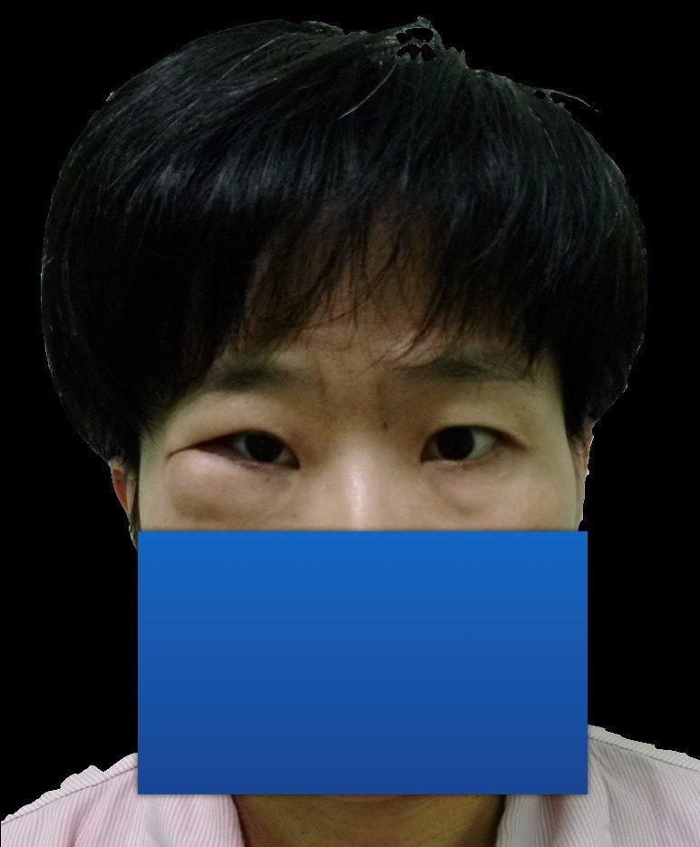 術前病患因上顎骨腫瘤造成右眼下緣腫脹。北榮/提供