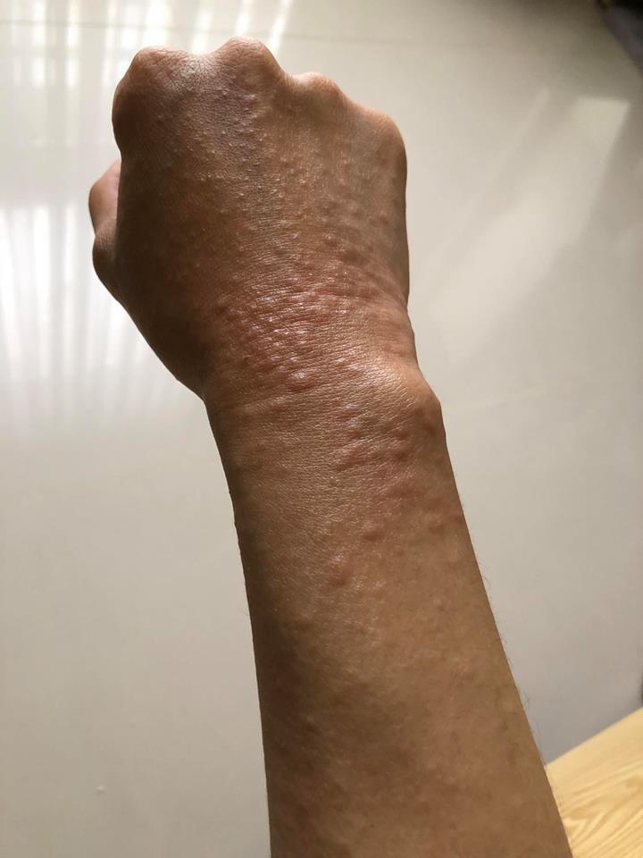 王晴因到海島度假,曝曬過度導致全身過敏。圖/摘自臉書