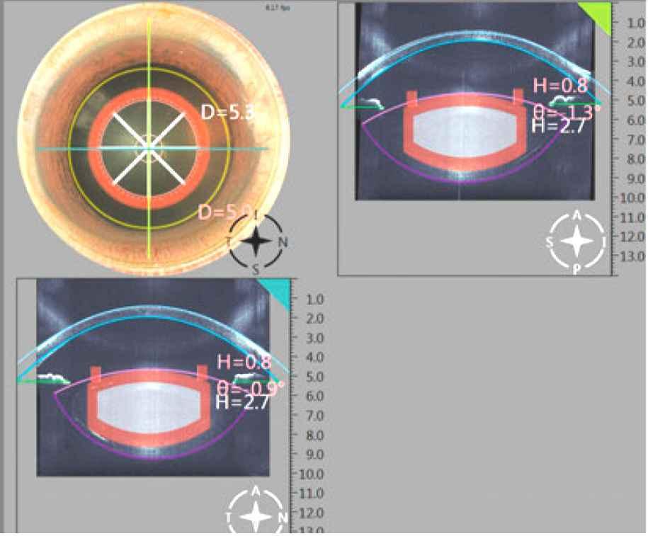林宏洲眼科醫師引進奈焦飛秒雷射手術,提升白內障手術安全性。 林宏洲眼科醫師/提供