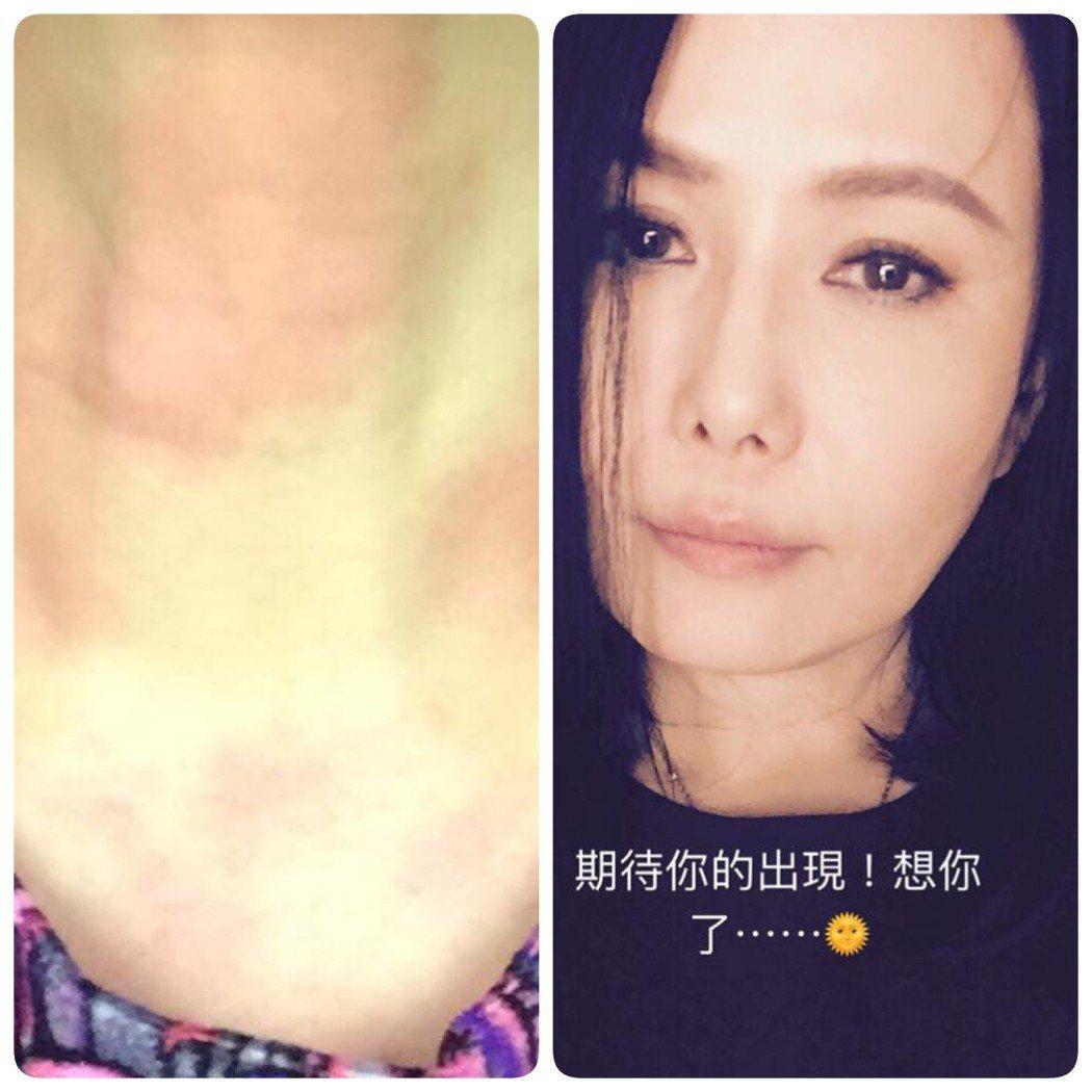 江蕙因蕁麻疹感到難耐。圖/摘自江蕙臉書