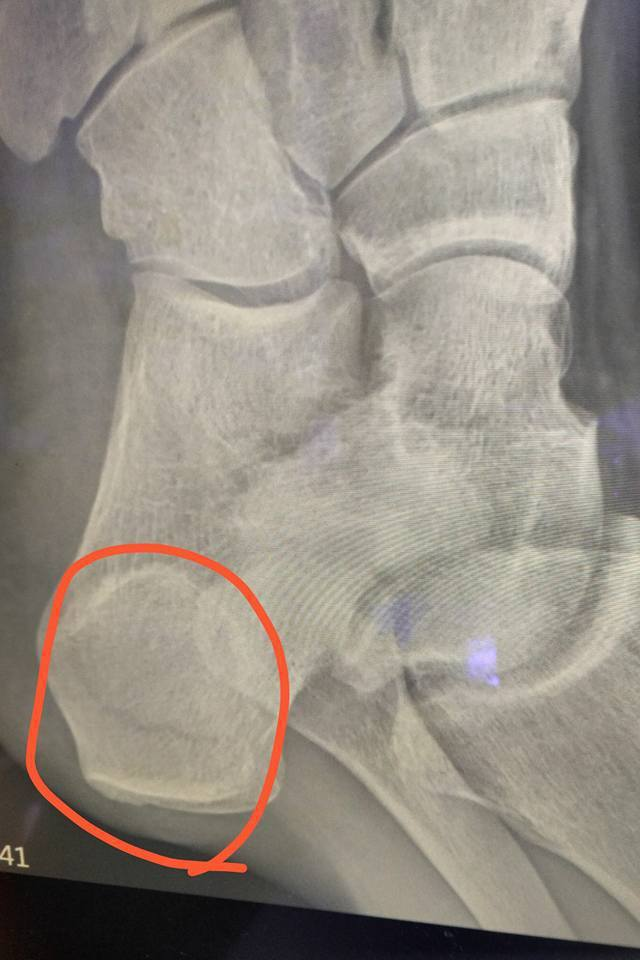 藍葦華左腳骨裂須停工六周。圖/摘自臉書