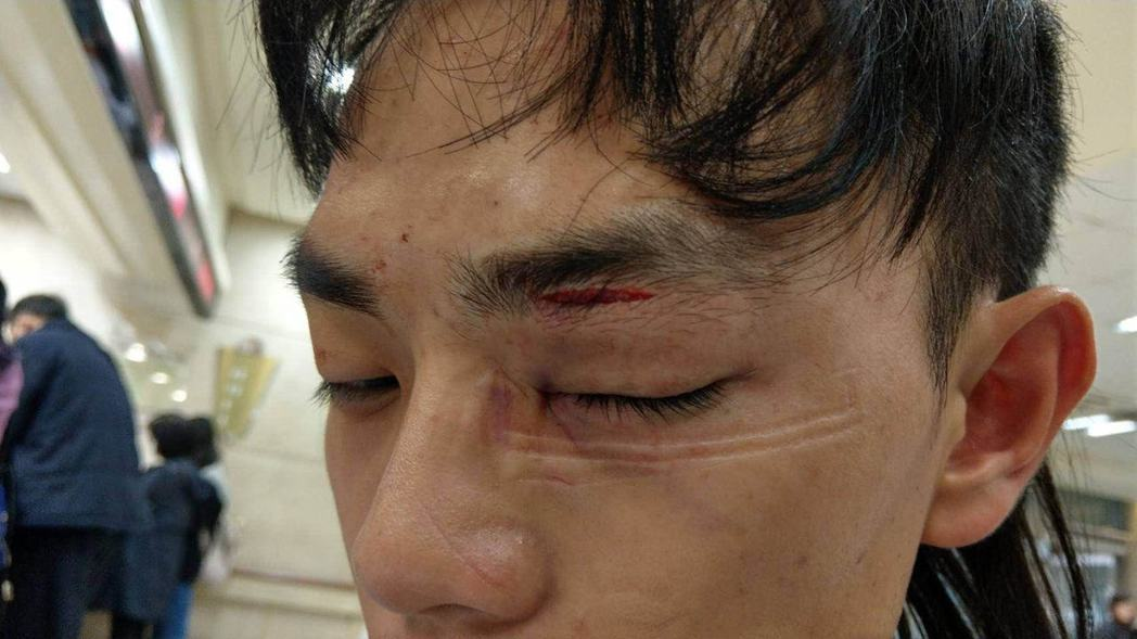 蔡哲文左眼明顯有傷痕。圖/多曼尼提供