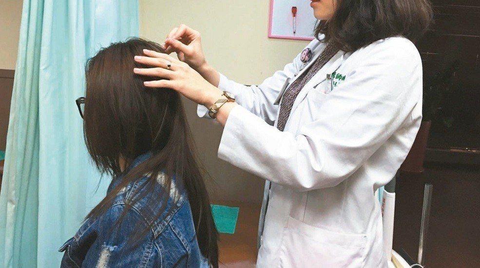 頭皮檢測示意圖。報系資料照