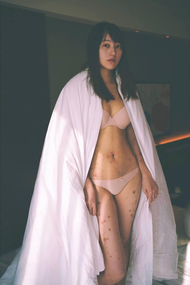 知名插畫家織織罹患異位性皮膚炎,帶著紅疹替NUDE拍攝內衣照片。圖/擷自face...