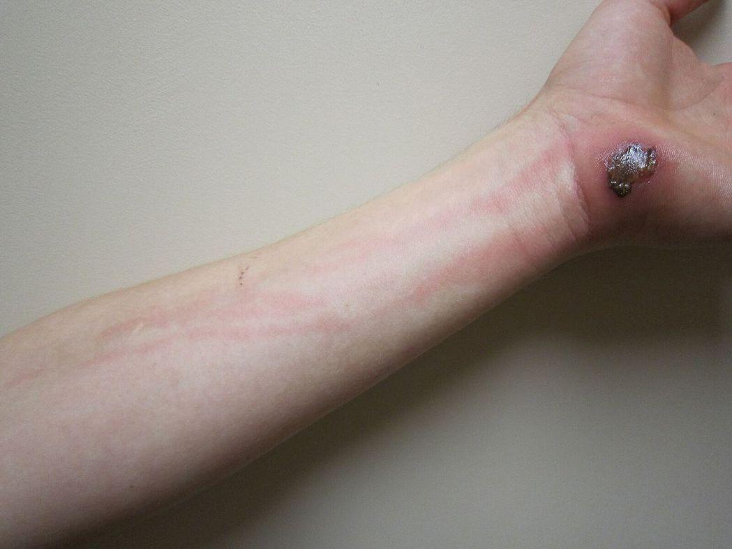 擦傷後引發的蜂窩性組織炎,伴隨著後續的淋巴組織感染。Cellulitis fol...