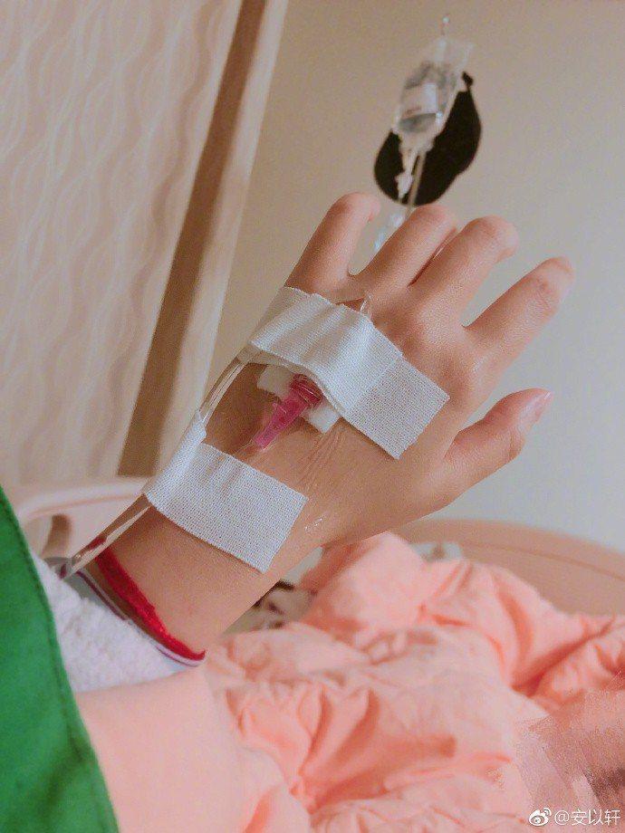 安以軒日前傳出子宮外孕住院。圖/摘自微博