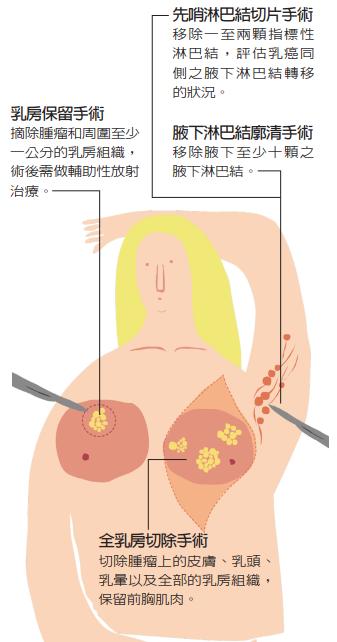 乳癌手術示意圖乳癌的手術治療包括乳房及腋下淋巴結的處理。 繪圖/豆寶