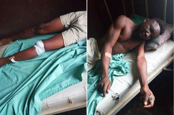 性侵女嬰的歹徒目前在醫院養傷。圖/取自Prince Gwamnishu Harr...