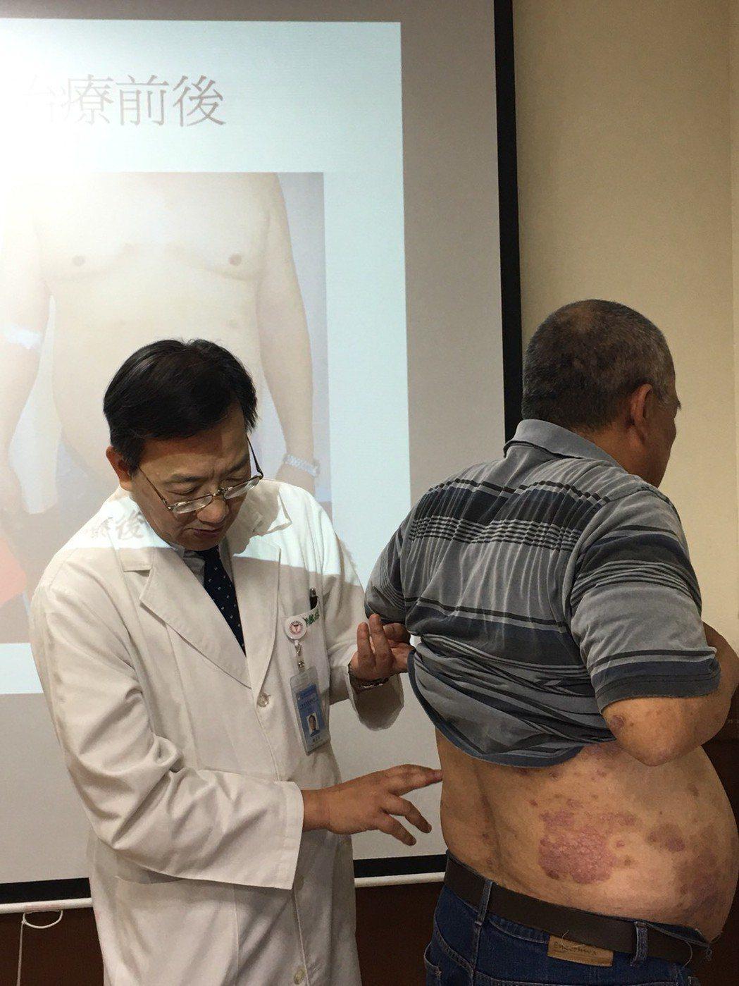 中山醫學大學附設醫院過敏風濕免疫科主任魏正宗(左)說,自體免疫疾病已進入免疫治療...