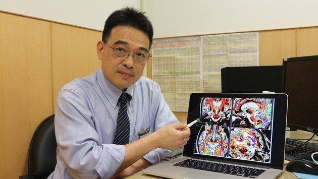 花蓮慈濟醫院神經功能科主任陳新源表示年輕型帕金森氏症,出現抗藥性的反應比老年人嚴...
