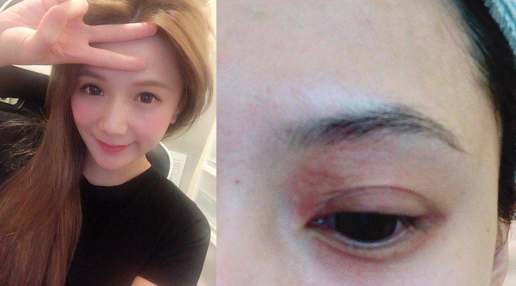解婕翎眼腫。圖/擷自臉書