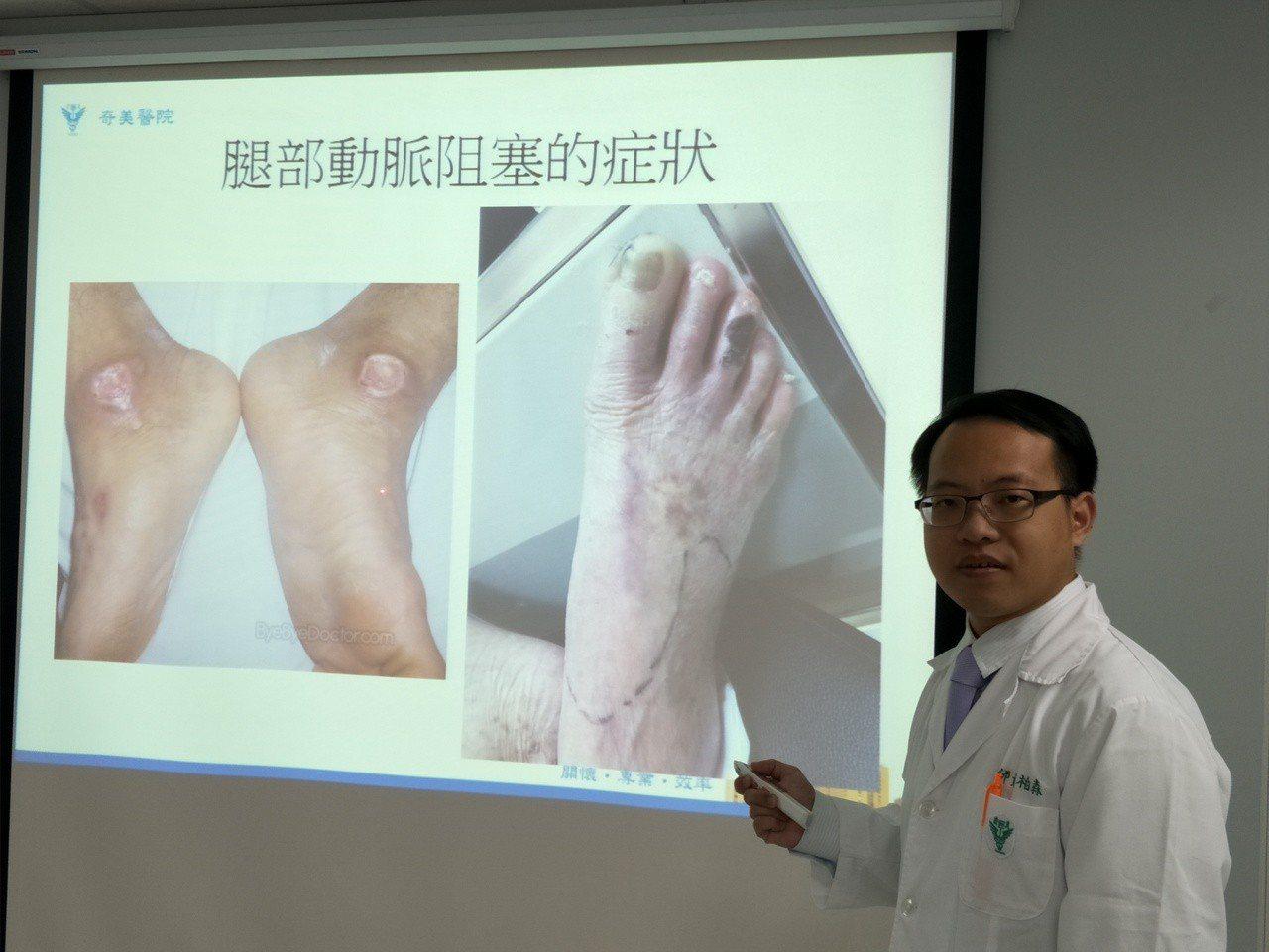 台南佳里奇美醫院醫師黃柏森提醒,腿部行走痠痛,小心是動脈血管阻塞,嚴重者甚至須截...