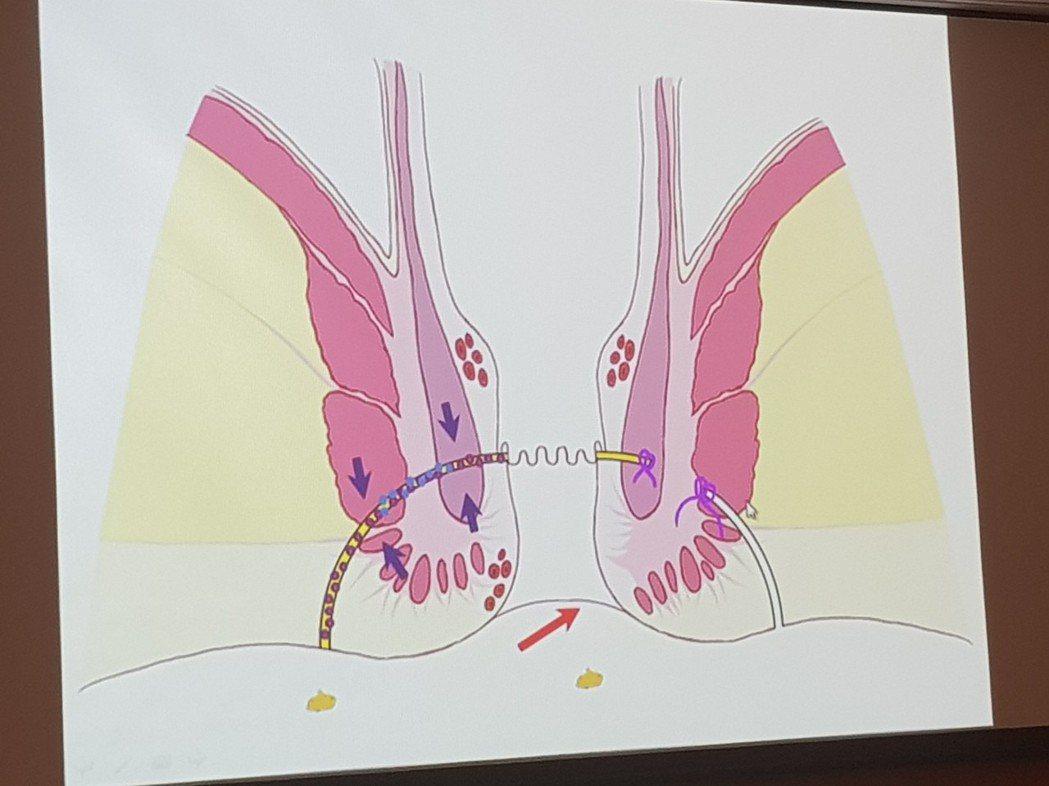 肛門廔管。記者修瑞瑩/翻攝