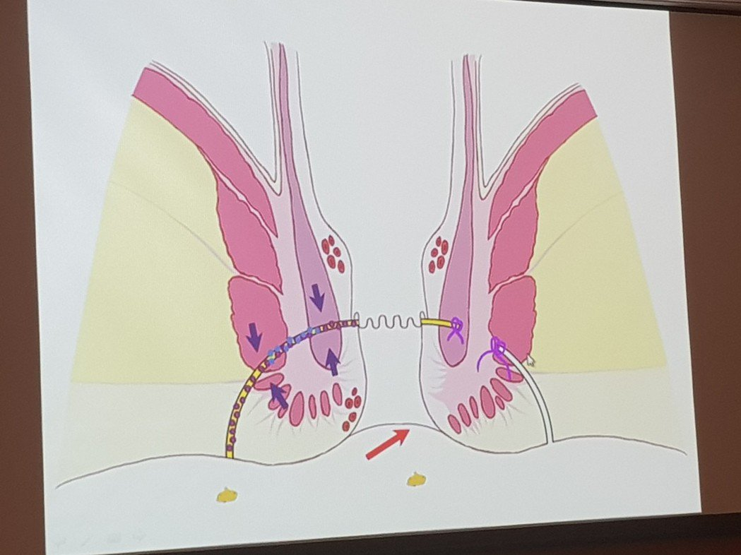 肛門廔管困擾許多人 記者修瑞瑩/翻攝