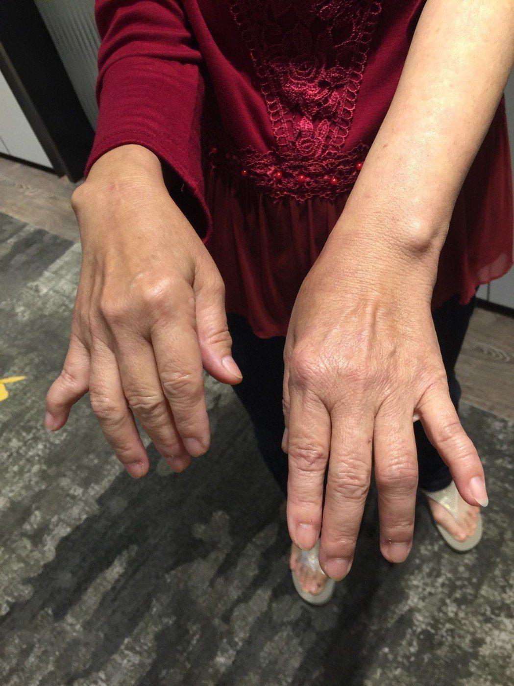 65歲的范女士關節變形,歷經10多次手術。記者黃安琪/攝影