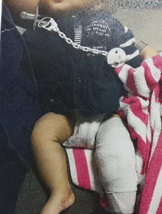 男嬰在4個月大時被發現受虐,四肢多處骨折,情況讓檢警都心酸。圖/記者胡蓬生翻攝