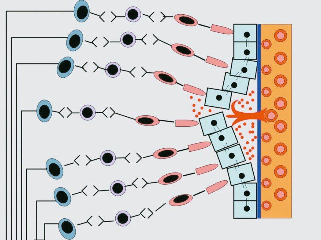 黃斑部病變,感光細胞會受到新生血管的排擠變得排列凌亂,使得黃斑部接受到的影像失去...