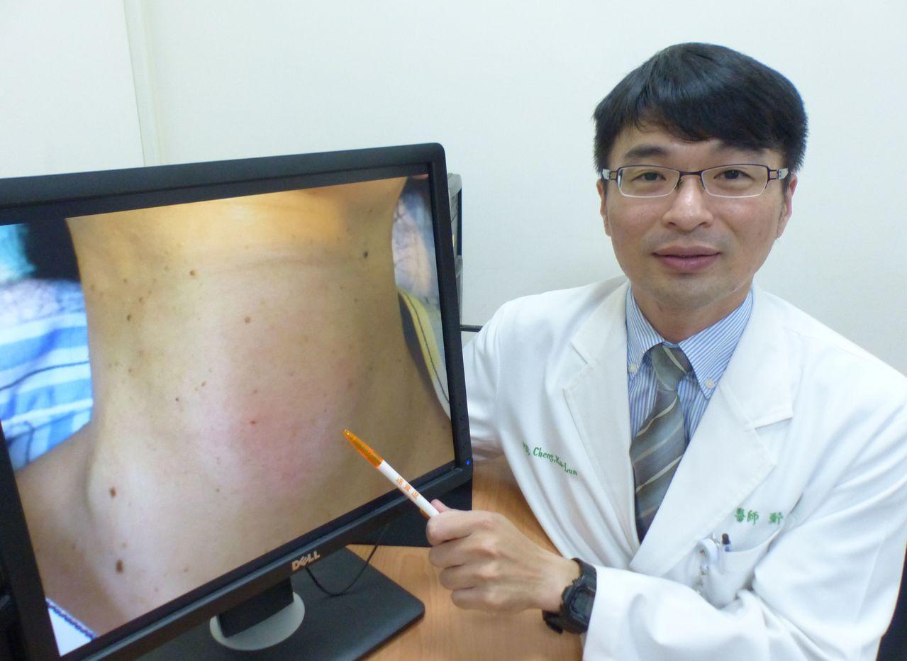 醫師鄭凱倫說明,民眾若發現脖子有腫塊,最好就醫檢查,對症下藥。記者趙容萱/攝影