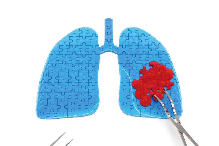 肺癌是吸菸者常見的疾病,但不代表不吸菸的你就不會罹患。 圖/元氣周報