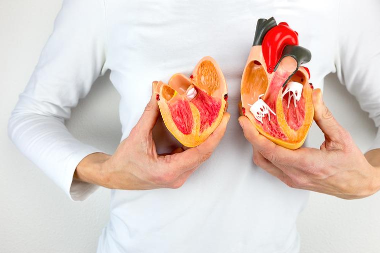 女性的心肌梗塞前兆,確實較少出現典型的心絞痛、胸痛症狀。 圖/ingimage