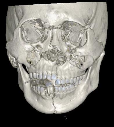 17歲男性騎機車戴半罩式安全帽發生車禍,造成嚴重的臉部受傷,圖為X光臉骨圖。記者...