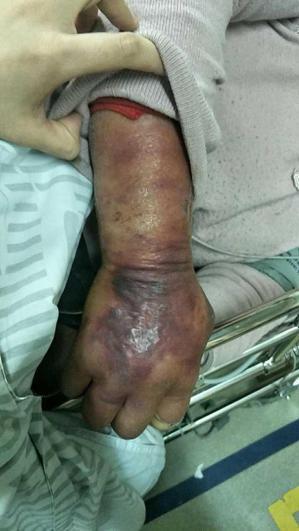一名婦人的手臂小傷口沒處理,三天後腫脹發黑,引發細菌感染休克。取自錢江晚報