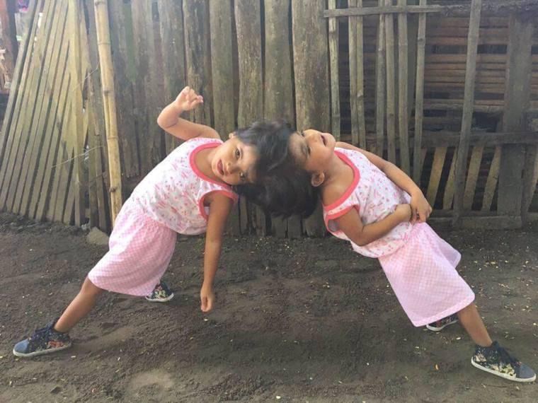 菲律賓有對頭部相連的6歲雙胞胎,彼此共享一條動脈。圖引用自Chiara and ...