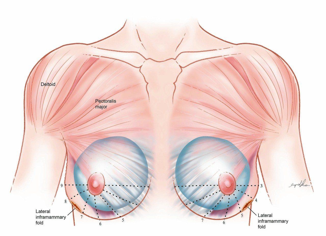 乳房整形示意圖:由乳房兩側外下側緣開4至5公分切口,可完整撥離乳房、矽膠與莢膜的...