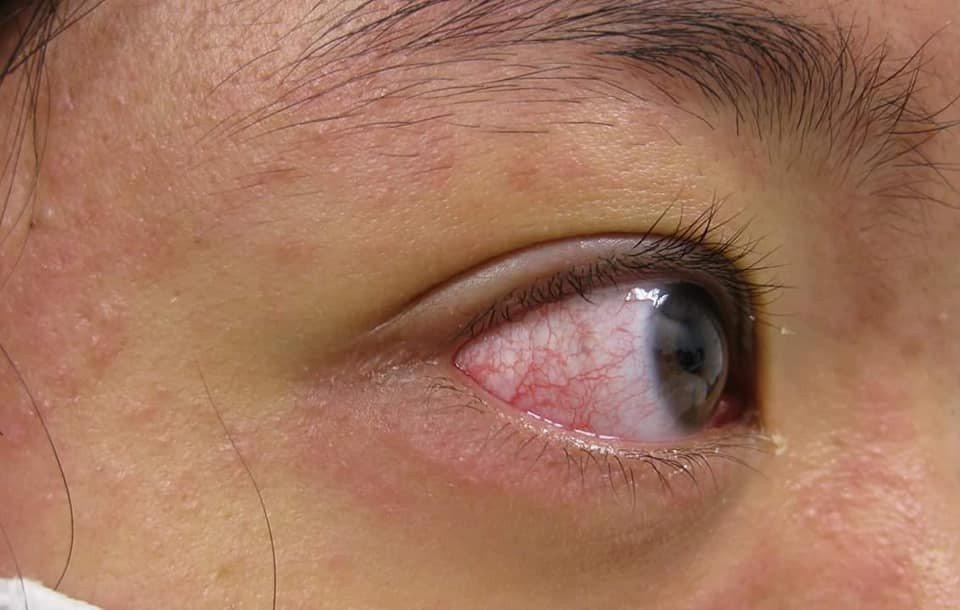 麻疹病例亦有結膜炎等眼睛紅的症狀。 圖/高雄長庚醫院川崎症中心提供
