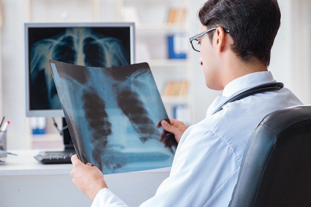 許多人可能認為只有吸菸者是罹患肺癌的高風險群,但令人驚訝的是,有百分之二十因肺癌...